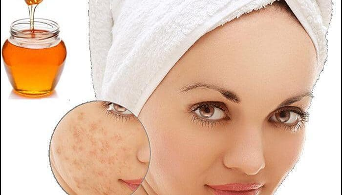 Top 5 Ways To Revome Acne Scars Rapidly