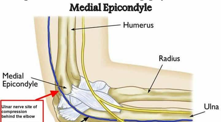 Epiphysis of The Medial Epicondyle