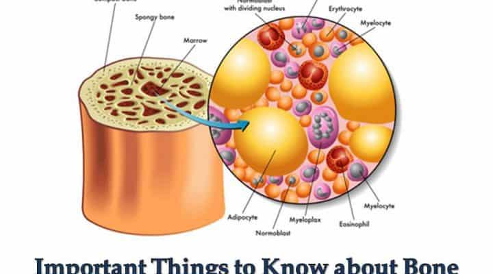 Important Things to Know about Bone Marrow Transplantation